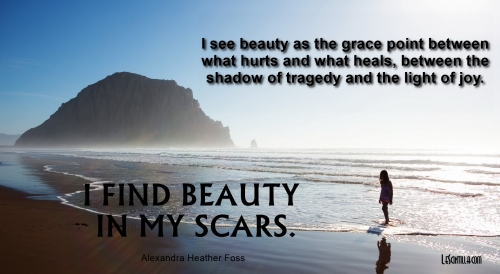 BEAUTY IN MY SCARS lescintilla